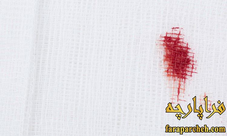 پاک کردن انواع لکه از پارچه_خون